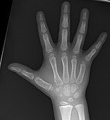 Normal hand of child, X-ray