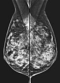 Normal dense mammogram