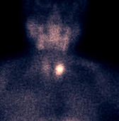Hyperparathyroidism, parathyroid scan