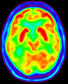 Normal brain, PET scan