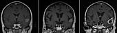 Radiation therapy, MRI