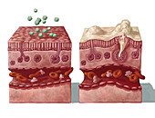 Mucous Reaction to Allergens, illustration