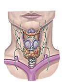 Thyroid Nodule, illustration