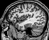 Normal Sagittal T1 MRI Brain 3