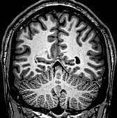 Normal Coronal T1 Brain