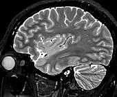 Normal Sagittal T2 Brain 4 0f 11