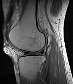 Knee, MRI, RF artefact