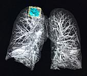 Right Upper Lobe Lung Mass, X-ray