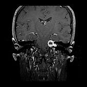 Vestibular Schwannoma, MRI