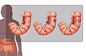 Diverticulosis and Diverticulitis, illustration