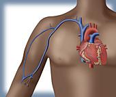 PICC intravenous device, illustration