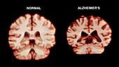 Normal Brain vs. Alzheimer's Disease, MRI Scan