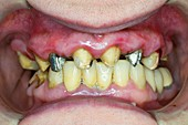 Tooth preparation for dental crowns