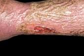 Chronic leg ulcers