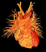 Human heart, 3D CT angiogram