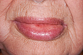 Angioedema of the lower lip due to drug reaction