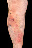 Haematoma on leg following an accident