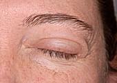 Angioedema eyelid swelling