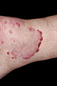 Ringworm fungal infection