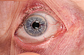 Arteriovenous malformation in an eye