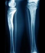 Osteomyelitis in the lower leg, X-rays