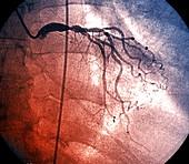 Left coronary artery, coronarography scan