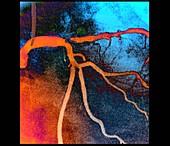 Coronary artery stenosis, coronarography scan