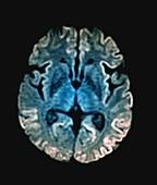 Creutzfeldt-Jakob disease, MRI scan
