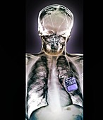 Parkinson's disease brain stimulation electrodes, X-ray