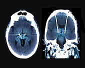 Parkinson's disease brain stimulation electrodes, CT scans