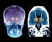 Parkinson's disease brain stimulation electrodes