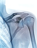 Shoulder joint, X-ray