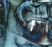Dental implant, X-ray