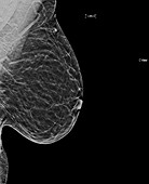 Normal breast, X-ray
