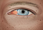 Pterygium in stage 2