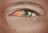 Pterygium in stage 3 with cap