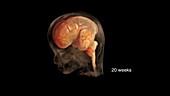 Prenatal Brain Development at 20 Weeks