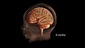 Prenatal Brain Development at 9 Months
