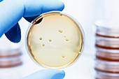 Lactobacillus bacteria colonies