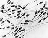 Sperm, LM