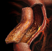 Plaque on Arteries