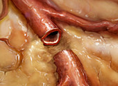 Sectioned Artery in Fat Tissue