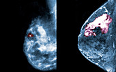 Breast Cancer, Mammogram vs. MRI
