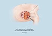 Mastectomy, Step 5 of 8, Illustration