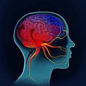 Migraine Pain Wave, Illustration
