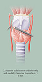 Thyroidectomy, 2 of 5