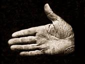 Jonathan Walker, Branded Hand S for Slave Stealer