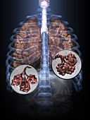 Unhealthy Lungs, 3D illustration (2 of 3)