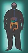 Cancer Risks of Obesity, Illustration