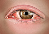 Severe allergic conjunctivitis